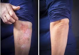 Dermolios - pour les problèmes de peau - site officiel - composition - avis