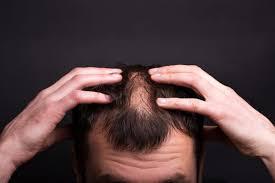 Mikobelle – contre la chute des cheveux - Amazon – prix – comment utiliser