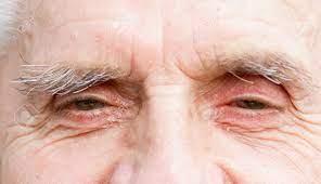Oculax – dangereux – comment utiliser - action
