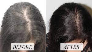Chevelo Shampoo - croissance des cheveux - Amazon - dangereux – prix