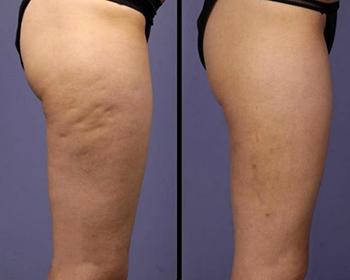 Perfect Body Cellulite - où trouver - commander - France - site officiel